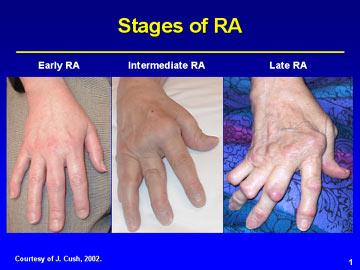 reumatoidni artritis.png